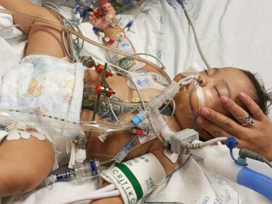 PHOTO: Knatalye Mata, shown here after separation surgery at Texas Childrens Hospital.