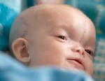 PHOTO: Dominic Gundrum was born with a Tessier midline facial cleft and an encephalocele.