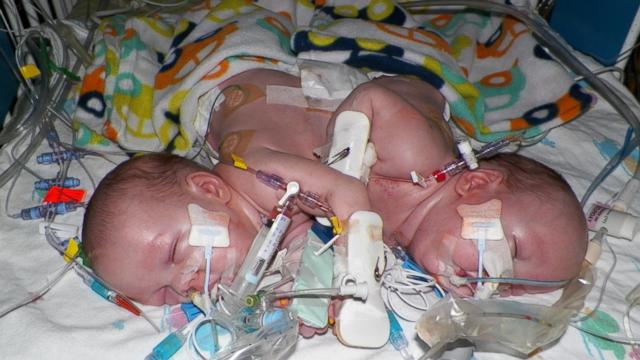 Parents Of Formerly Conjoined Twins Tell Their Story Photos Abc News