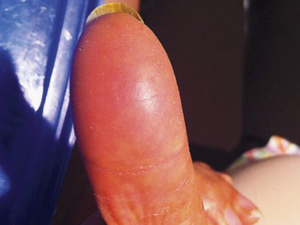 PHOTO: A woman who lost her fingerprints as a side effect of chemotherapy was denied a bank transaction because of it.