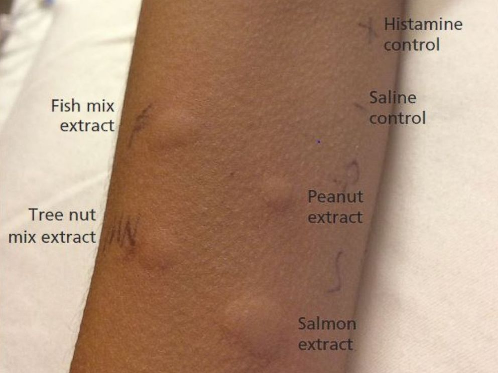 PHOTO: A skin prick test shows strong positive reactions to peanut, tree nut mix, salmon and fish mix.
