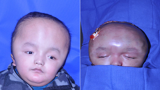 PHOTO: Doctors used computer modelling to plan skull surgery for 7-year-old Dawa Titung, who was born with an extremely large head.