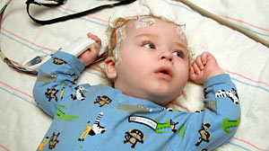 PHOTO Evan Stauff had part of his brain removed in order to treat seizures
