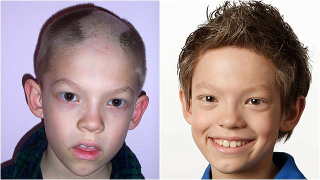 PHOTO:Before and after photos of a boy with trichotillomania, a condition that causes sufferers to pull out their own hair.