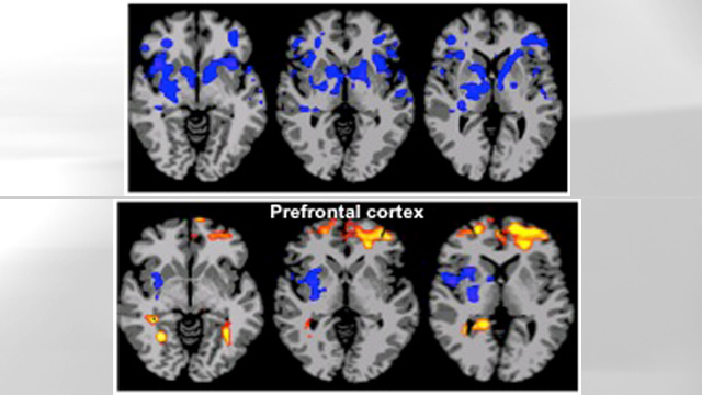 PHOTO: Brain scans of obese and lean people