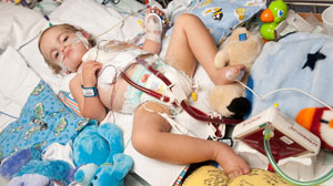 PHOTO Owen Stark is the youngest in the world to receive an artificial lung.
