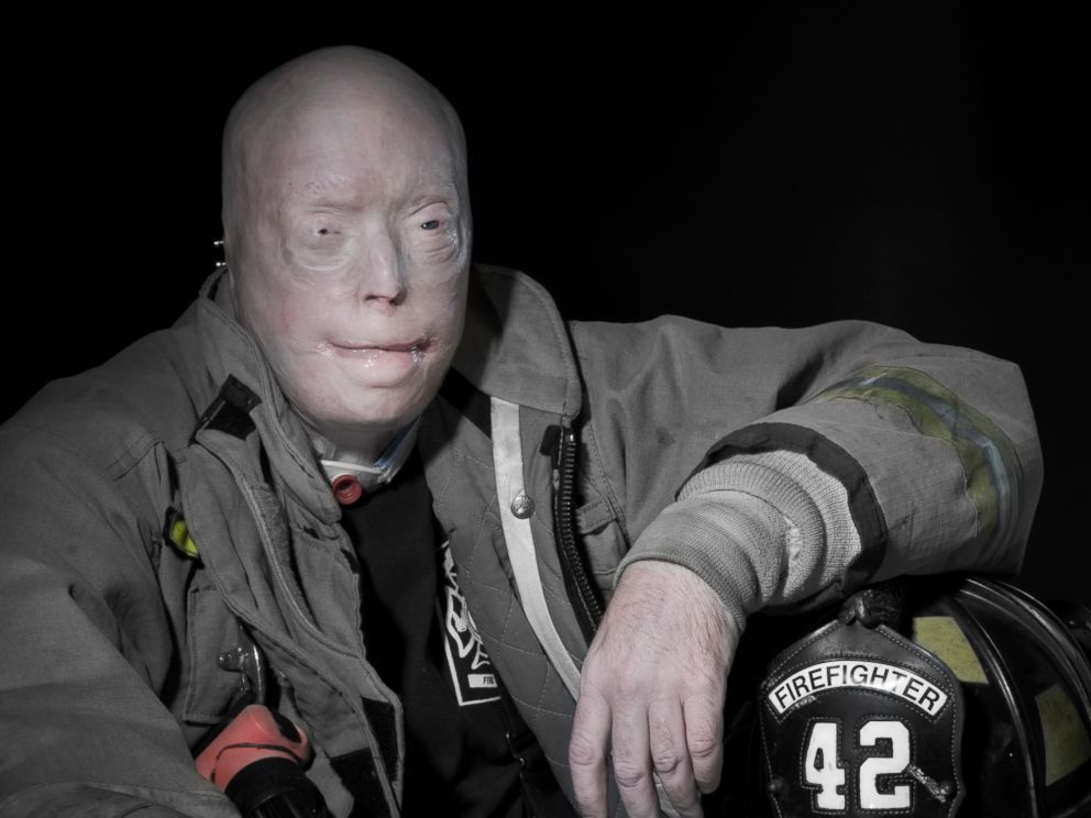 Pat Hardison is shown here in his firefighter uniform before his face transplant surgery at NYU Langone Medical Center.