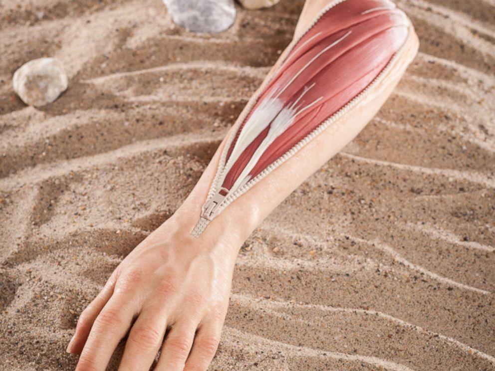 PHOTO: A lifelike arm prosthetic designed by stamos + braun prothesenwerk gmbh.