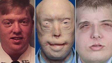 Face Transplant Surgery Gives 41 Year Old Former Firefighter A New 26 Year Old Face Abc News