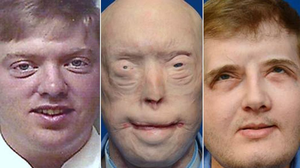 How A Severely Burned Former Firefighter Is Doing 1 Year After Face Transplant Surgery Abc News