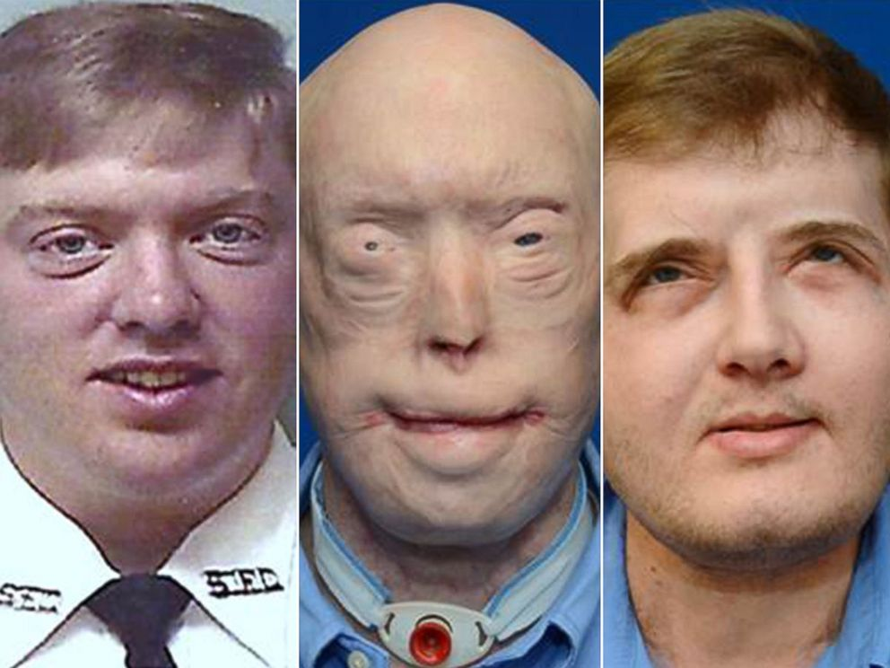 PHOTO: Pat Hardison is shown here before the 2001 fire (left), then before his face transplant surgery (center) and what he looks like today after surgery in August 2016 (right).