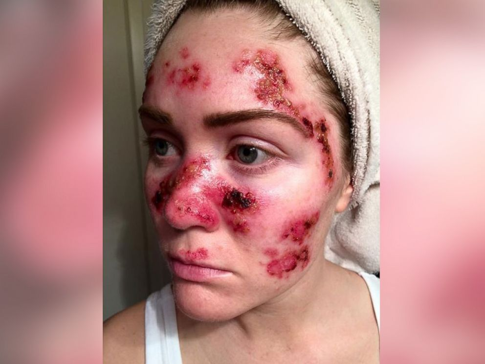 PHOTO: Tawny Willoughby posted this photo to her Facebook page on April 25, 2015 to draw attention to the risks of skin cancer.