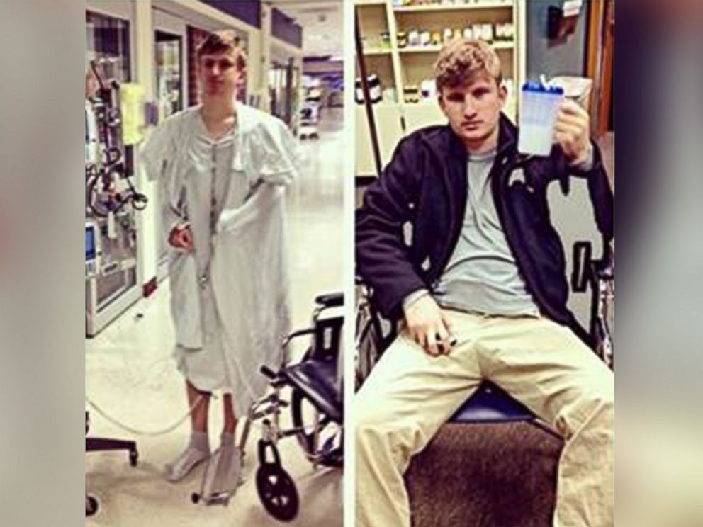 PHOTO: College student Brian Connor was able to stop taking immunosuppressant drugs after getting his twin brothers kidney.