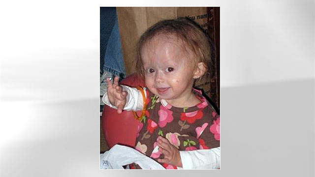 PHOTO: Zoey Penny suffers from a rare childhood condition known as Progeria disease. The disorder causes children to age 10 times faster than a normal person.