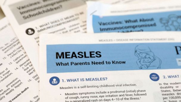 New measles case reported in metro Atlanta