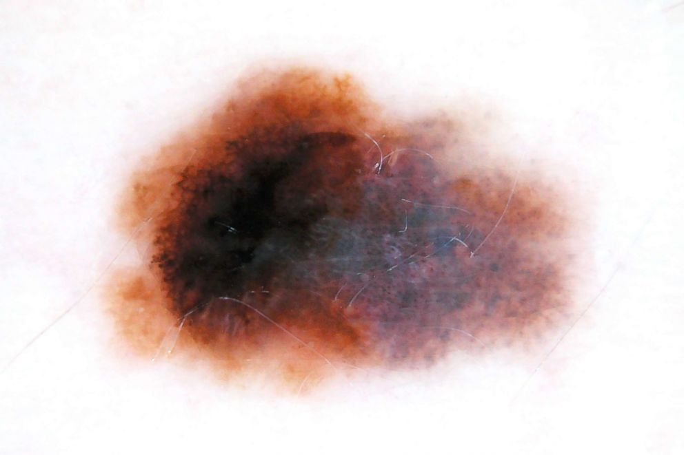 PHOTO: Melanoma appearance with dermoscopy. The big dark blotch on the left side and the blue-gray veil on the right side of melanoma can be seen.