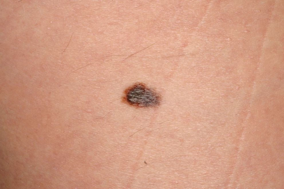 PHOTO: Melanoma with the naked eye exam. Irregularly-shaped dark brown skin lesion.