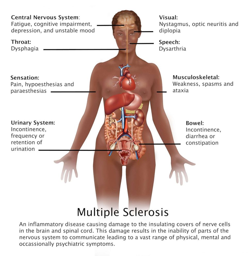Diagram showing the symptoms of multiple sclerosis and their location in the human body.