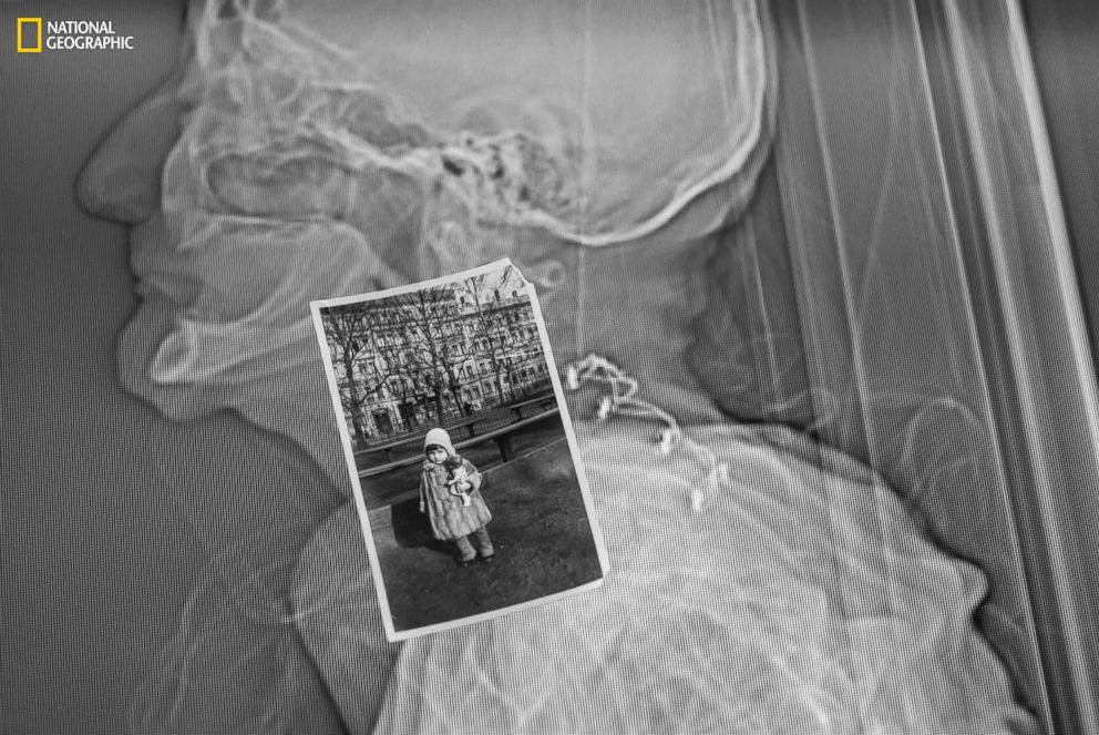 PHOTO: Born in Leipzig, Germany, Potter was three in this photograph taken in her native country. The ghostly CT scan in the background was done upon her death at age 87.