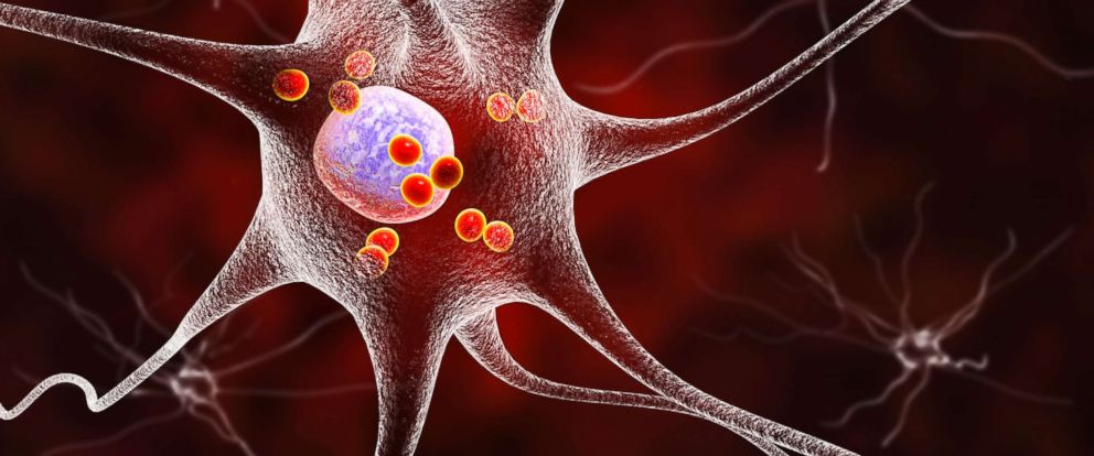 PHOTO: In this undated stock photo shows Parkinsons disease nerve cells. Computer illustration of human nerve cells affected by Lewy bodies (small red spheres inside cytoplasm of neurons) in the brain of a patient with Parkinsons disease.