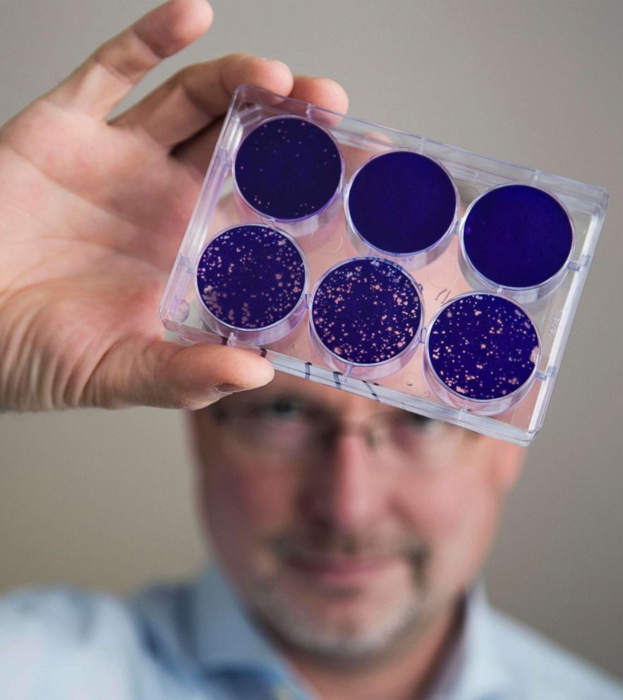 PHOTO: In this Aug. 8, 2013 photo provided by Duke University, Dr. Matthias Gromeier holds samples of the modified poliovirus he developed to attack glioblastoma brain tumor cells at Duke in Durham, N.C.