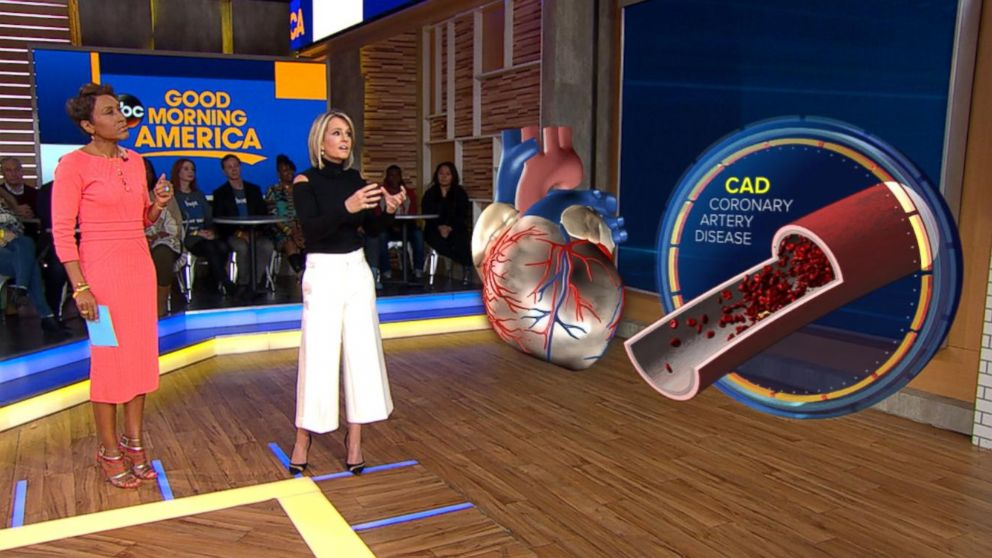 ABC News' chief medical correspondent Dr. Jennifer Ashton uses a 3-D augmented reality human model to demonstrate what a traditional heart attack caused by coronary artery disease looks like.