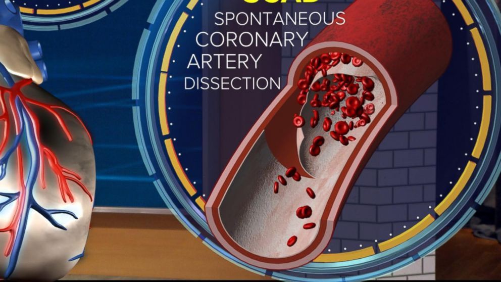 PHOTO: ABC News chief medical correspondent Dr. Jennifer Ashton uses a 3-D augmented reality human model to demonstrate what a traditional heart attack caused by a Spontaneous Coronary Artery Dissection (SCAD) looks like.