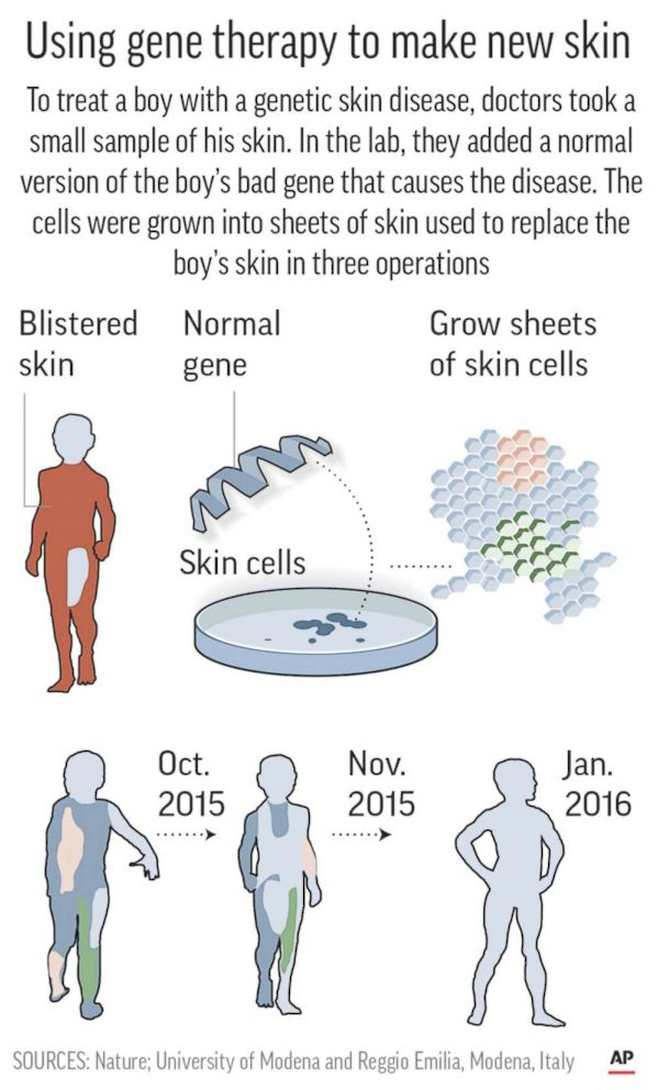 PHOTO: Diagram shows large skin graft treatment incorporating gene therapy.