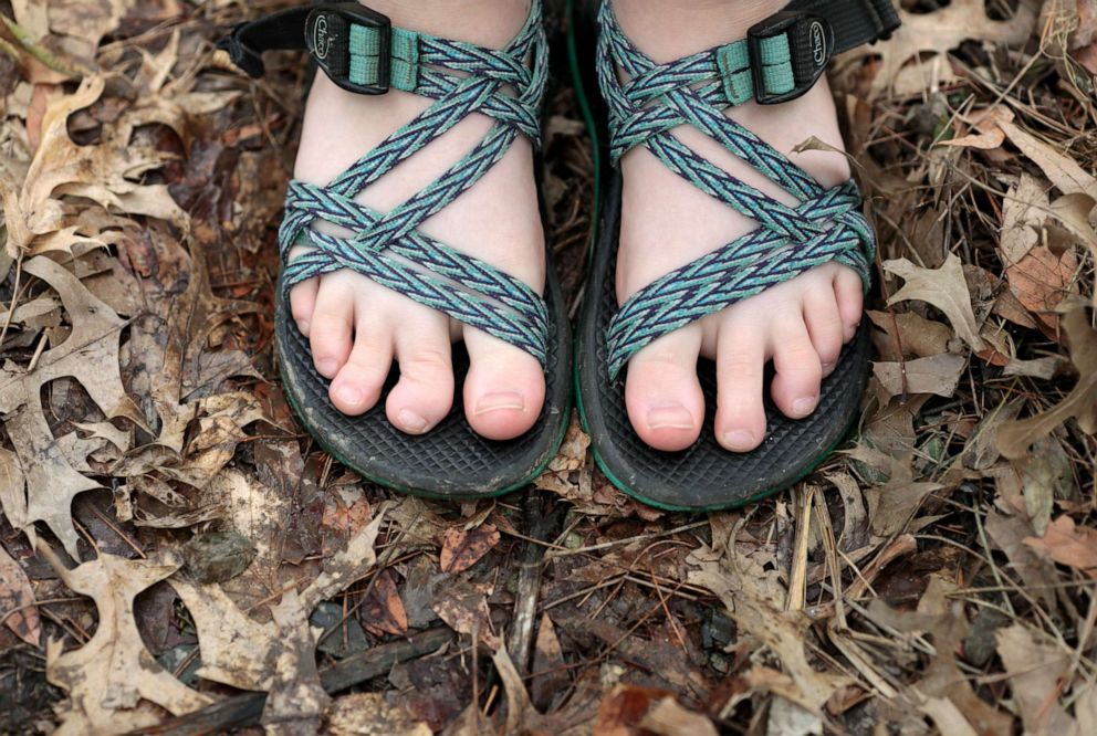 PHOTO: Oakley Yoder shows her now deformed toe after a snake bit her at an Illinois summer camp in July 2018.