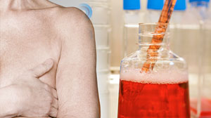Photo: Using stem cells to regrow breast tissue.