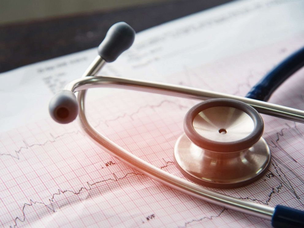 PHOTO: A stethoscope sits on a print out of an EKG test result.