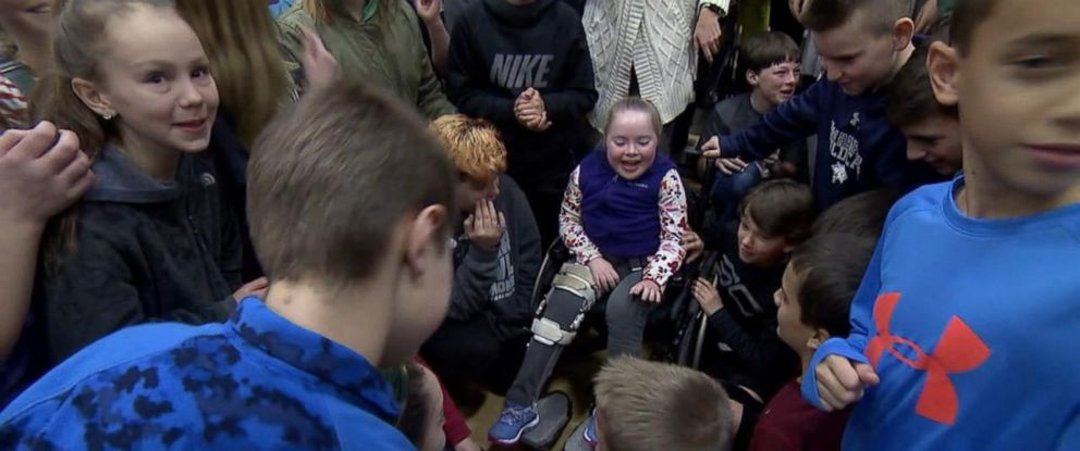 PHOTO: Sixth-graders at Ipswich Middle School celebrate with classmate Talia Duff on Jan. 3 after they helped her foundation raise $1 million in 2017. Talia Duff has Charcot-Marie-Tooth neuropathy type 4J and her foundation is helping find a cure.