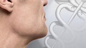 throat disease