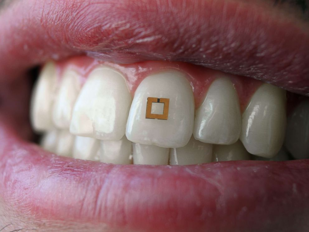PHOTO: Researchers at Tufts University are experimenting with sensors attached to human teeth that might be able to monitor food and caloric intake and send signals to nearby devices.