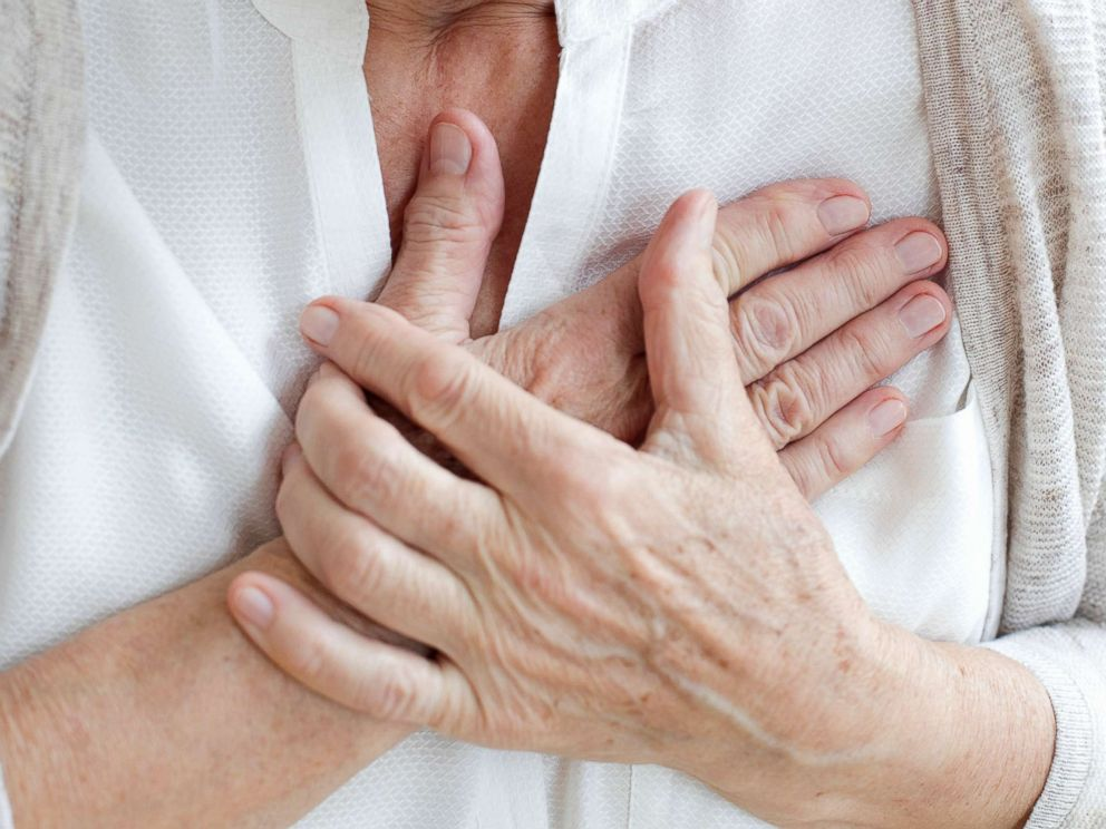 PHOTO: A senior woman holds her hands to her chest in an undated stock photo.