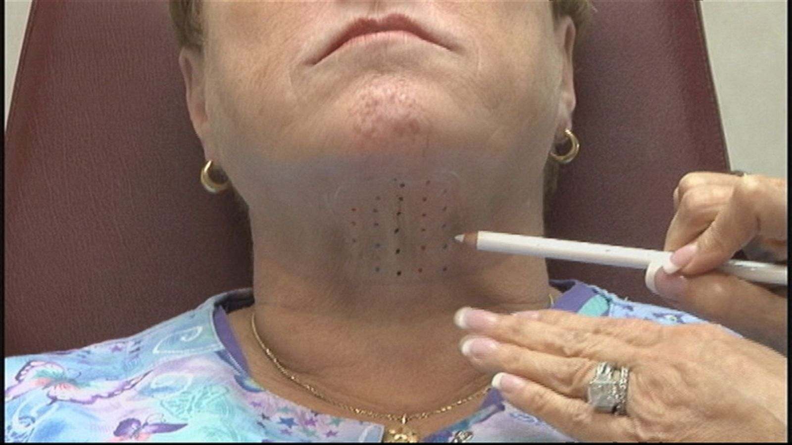 double chin eliminator injection what to know abc news