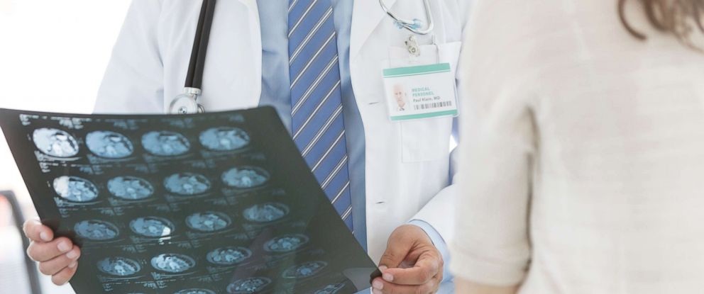 PHOTO: A doctor looks over a patients brain scan in an undated stock photo.