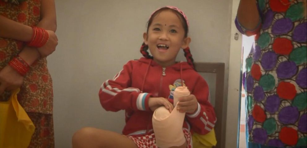 VIDEO: Shane Basi made good on his promise to help Khendro Tamang get a prosthetic leg and undergo physical therapy after she lost her leg.