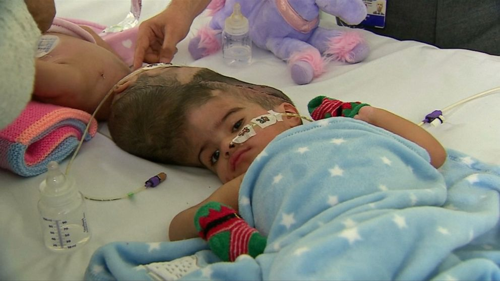 Twins conjoined at the head successfully separated