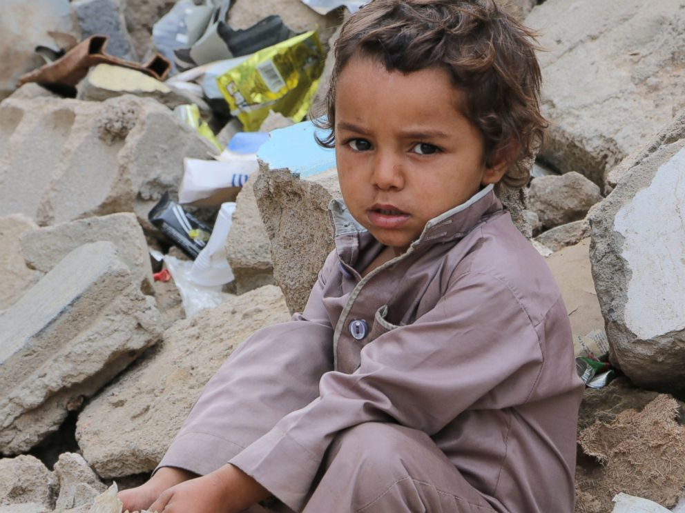PHOTO: The continuing violence in Yemen is fuelling one of the worst hunger crises in the world, with nearly 7 million people not knowing where their next meal will come from and in desperate need of food assistance.