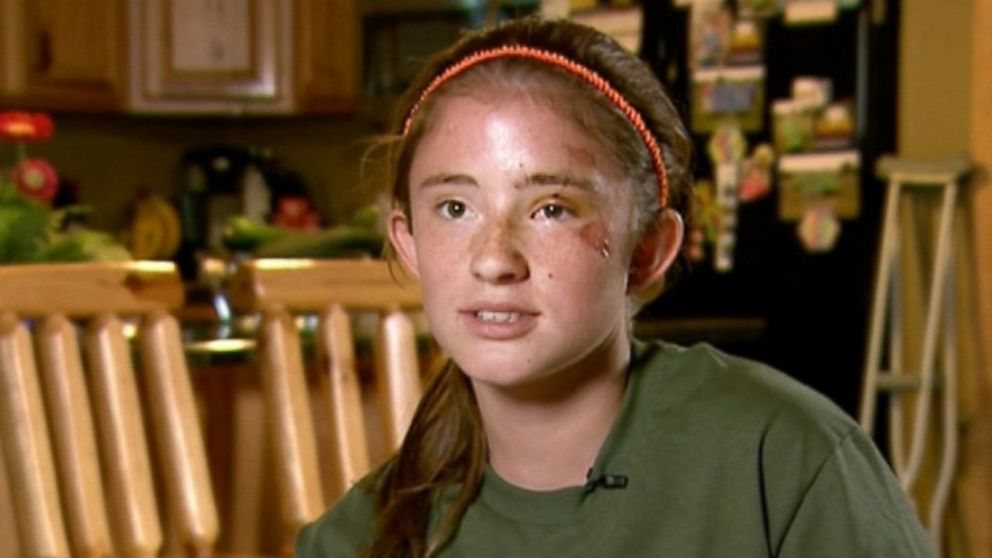 12-Year-Old Girl Thought She Was A Goner In Bear Attack -6400