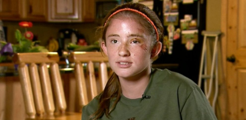 PHOTO: Abby Wetherell was jogging on a trail in Cadillac, Mich., when she was mauled by a black bear that weighed several hundred pounds