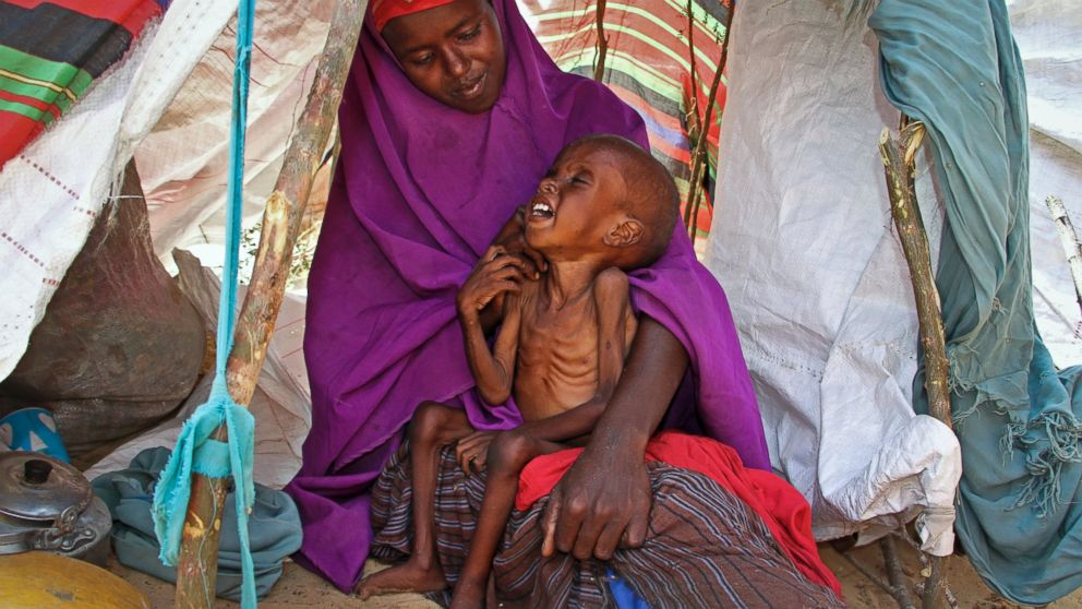A newly displaced Somali mother Sahra Muse, 32, comforts her malnourished child Ibrahim Ali, 7, in their makeshift shelter at a camp in the Garasbaley area on the outskirts of Mogadishu, Somalia, on March 28, 2017.