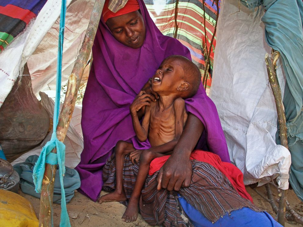 PHOTO: A newly displaced Somali mother Sahra Muse, 32, comforts her malnourished child Ibrahim Ali, 7, in their makeshift shelter at a camp in the Garasbaley area on the outskirts of Mogadishu, Somalia, on March 28, 2017.