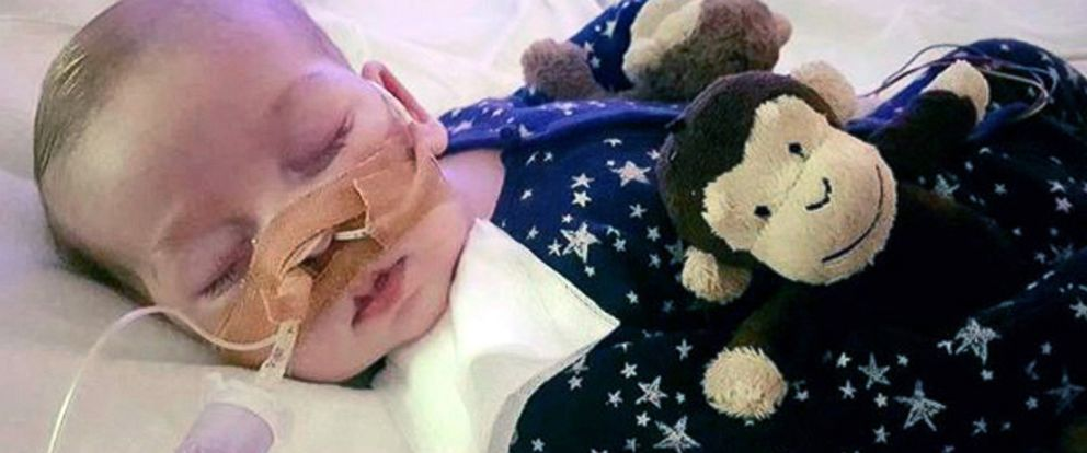 PHOTO: This is an undated hand out photo of Charlie Gard provided by his family, at Great Ormond Street Hospital, in London.