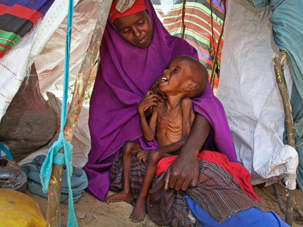 PHOTO: Newly displaced Somali mother Sahra Muse, 32, comforts her malnourished child Ibrahim Ali, 7, in their shelter at a camp in the Garasbaley area on the outskirts of Mogadishu, Somalia, March 28, 2017.