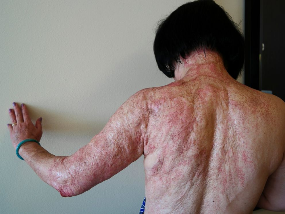 PHOTO: In this Sept. 27, 2015 photo, Kim Phuc shows the burn scars on her back and arms after laser treatments in Miami that caused by a napalm bomb in Vietnam more than 40 years ago.