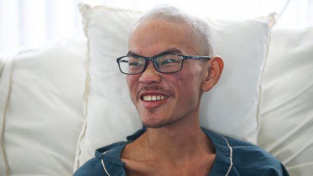 Hiker rescued after 47 days stranded in Nepal survived on salt, water