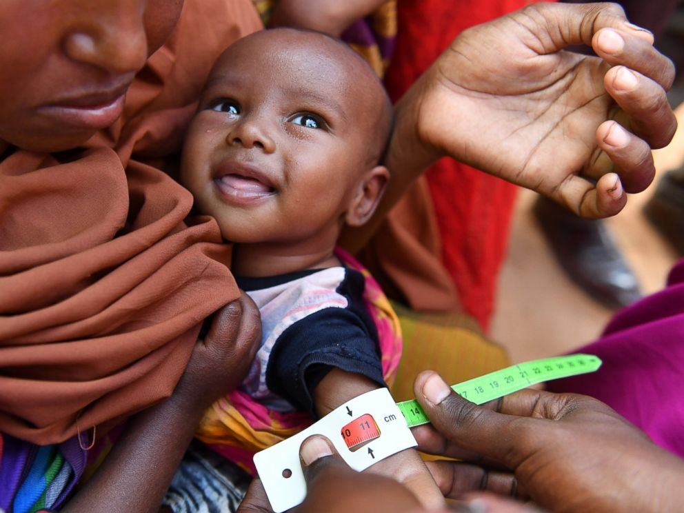 PHOTO: An acute malnourished child is measured by the arm perimeter by a UNICEF staff inside the IDP camp in Doolow, in Somalia, on March 20, 2017.