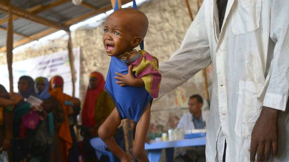 A malnourished child is processed by an aid worker for a UNICEF, funded health program catering to children displaced by drought, at a facility in Baidoa town, the capital of Bay region of south-western Somalia where the spread of cholera has claimed tens of lives of IDP's compounding the impact of drought, on March 15, 2017.